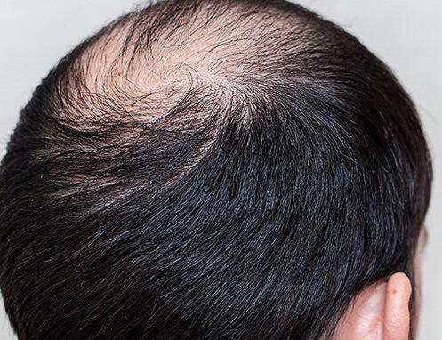 alopecia androgenetica que es