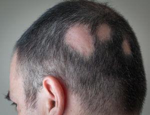 tratamiento alopecia areata IQC