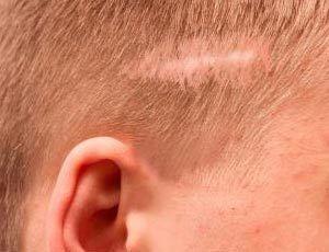 no crecimiento del pelo por cicatriz