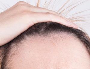 que es la alopecia fibrosante imagen