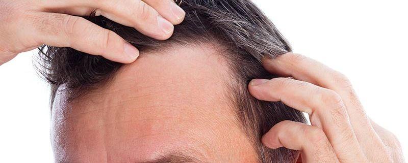 alopecia hombre