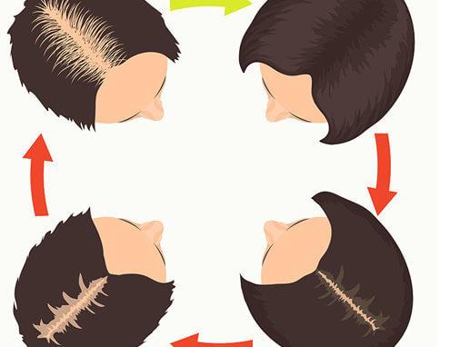 niveles alopecia femenina
