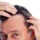1. Caída del cabello posterior al procedimiento