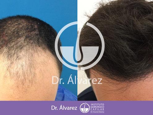 implante capilar dr alvarez