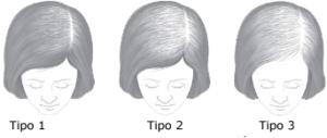 caida del pelo mujer