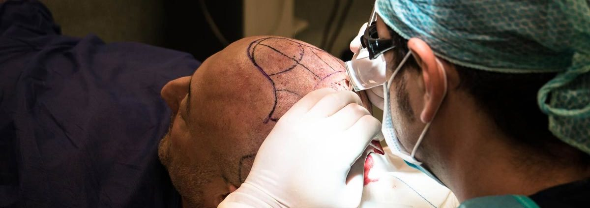 operacion injerto capilar IQC