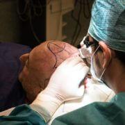 Qué técnica de trasplante capilar es la más adecuada para ti