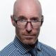 Causas de la alopecia instituto quirurgico capilar