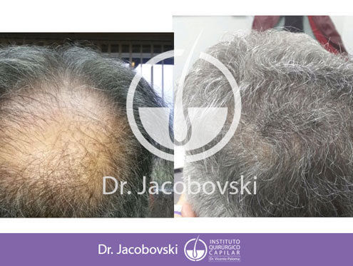 clinica capilar doctor jacobovski cirujano