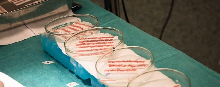 tecnología para mantener sanos los folículos