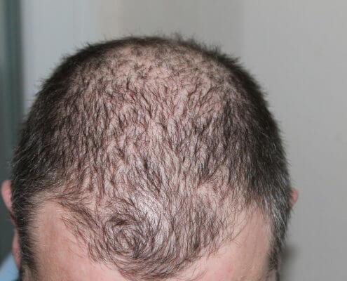 Mitos sobre la pérdida de cabello