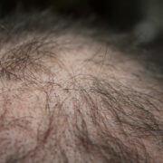 Trasplante de cabello en el paciente joven